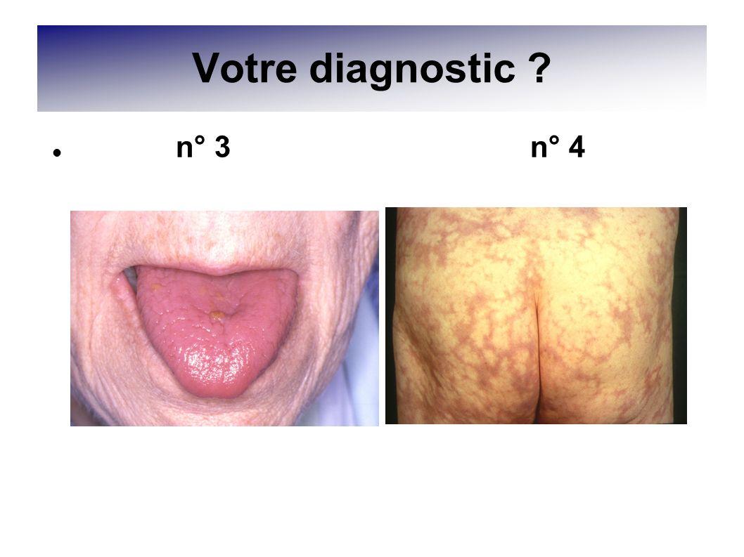 Votre diagnostic ? n° 3 n° 4
