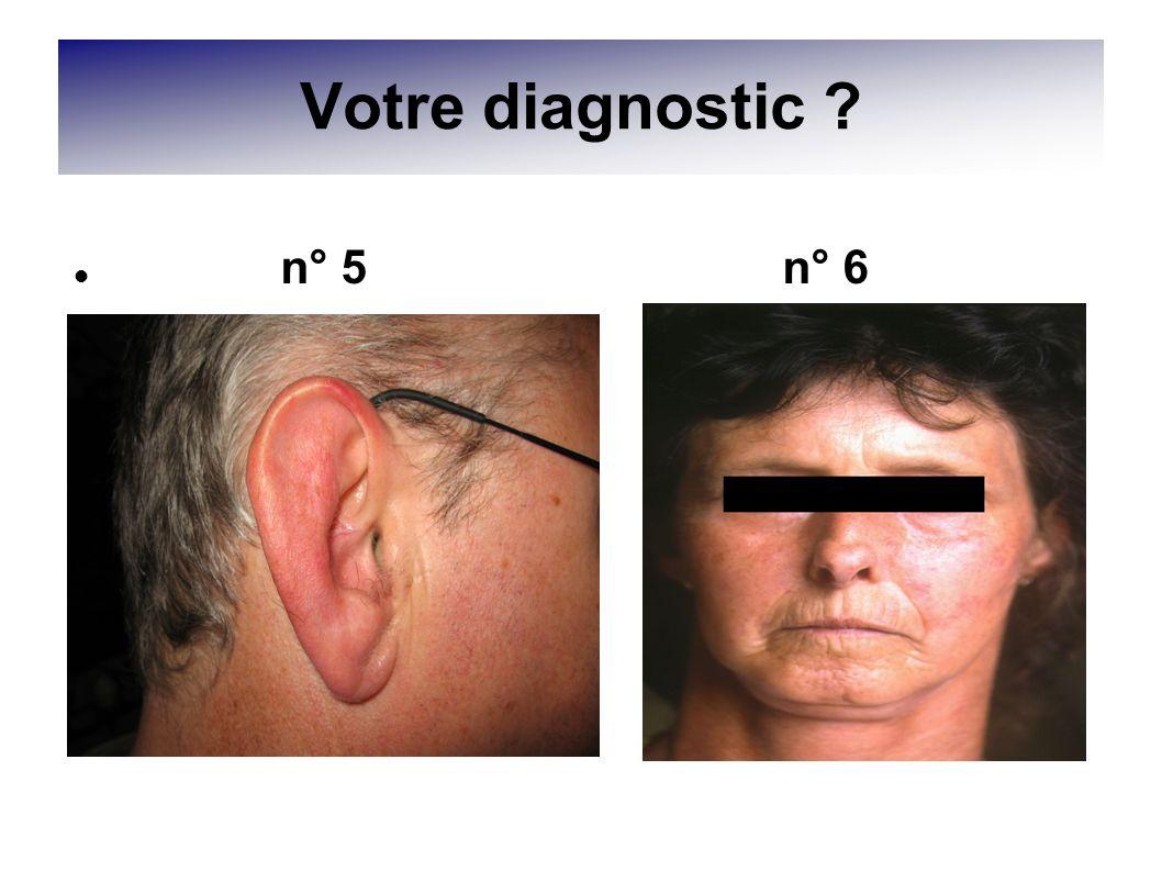 Votre diagnostic ? n° 5 n° 6