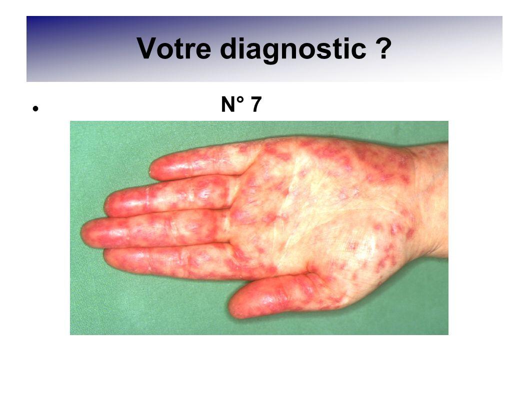 Votre diagnostic ? N° 7