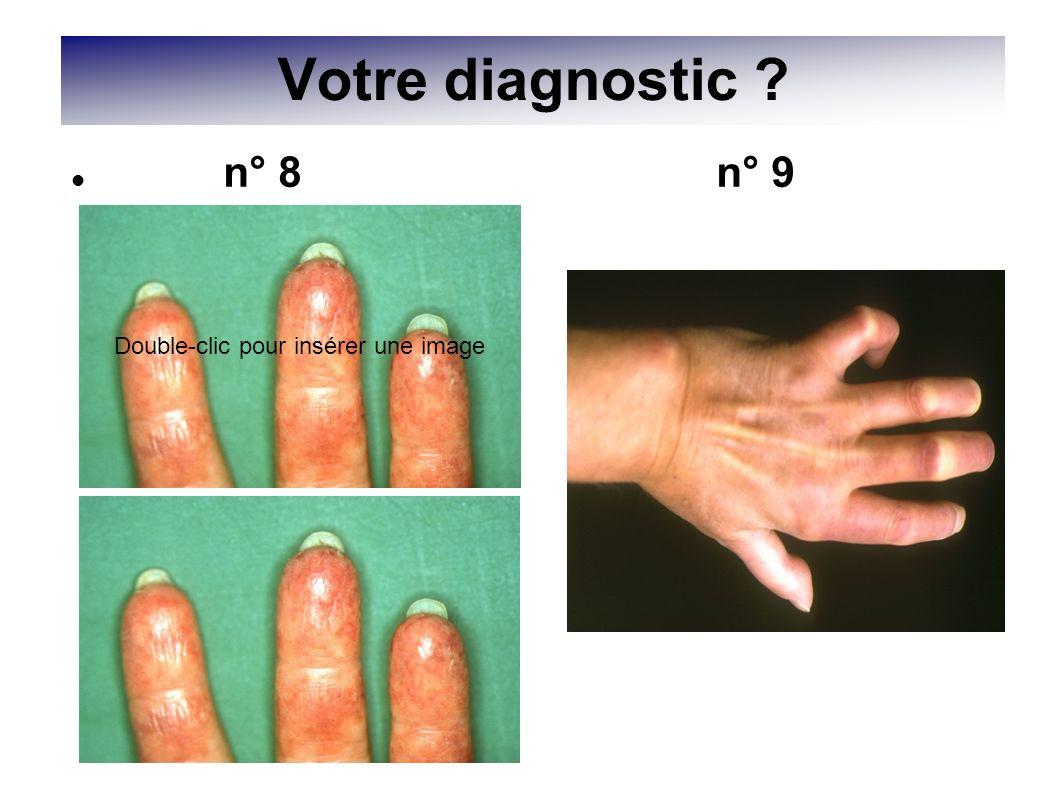 Votre diagnostic ? Double-clic pour insérer une image n° 8 n° 9
