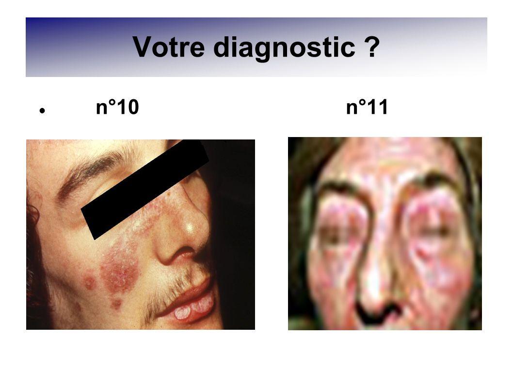 Votre diagnostic ? n°10 n°11