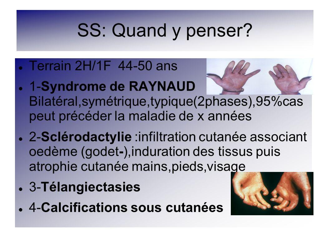 SS: Quand y penser? Terrain 2H/1F 44-50 ans 1-Syndrome de RAYNAUD Bilatéral,symétrique,typique(2phases),95%cas peut précéder la maladie de x années 2-