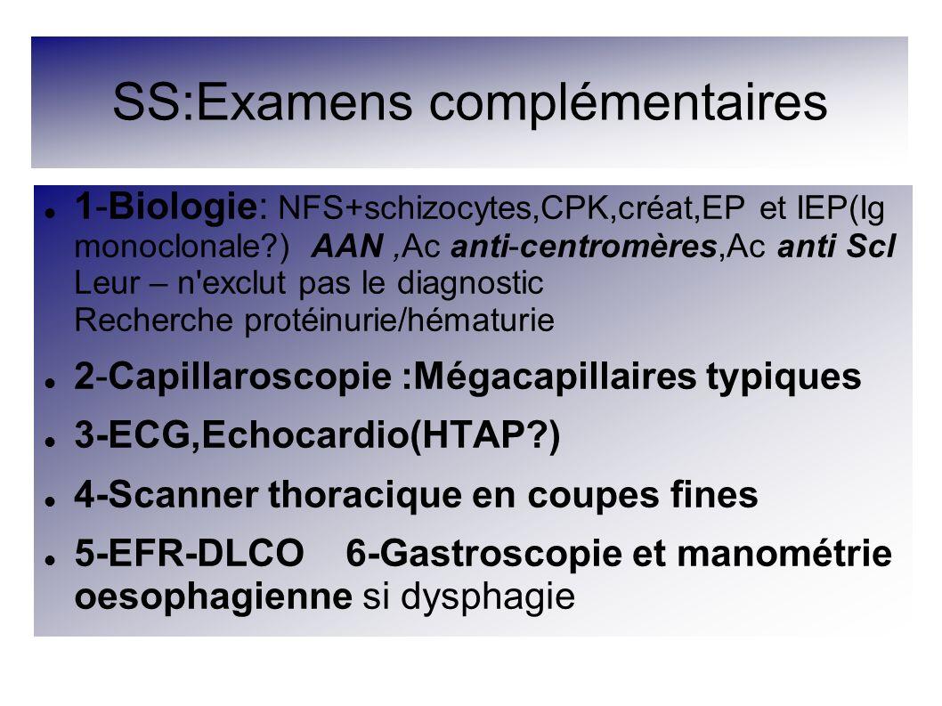 SS:Examens complémentaires 1-Biologie: NFS+schizocytes,CPK,créat,EP et IEP(Ig monoclonale?) AAN,Ac anti-centromères,Ac anti Scl Leur – n'exclut pas le