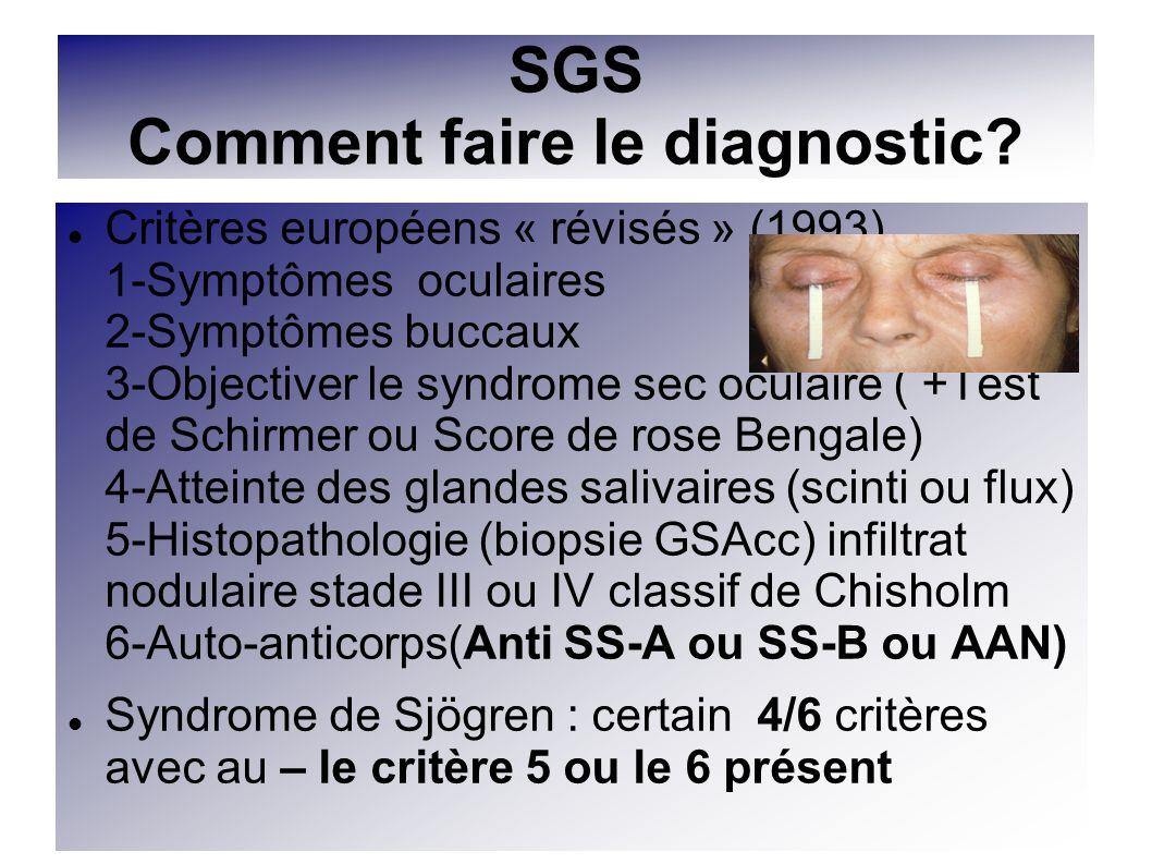 SGS Comment faire le diagnostic? Critères européens « révisés » (1993) 1-Symptômes oculaires 2-Symptômes buccaux 3-Objectiver le syndrome sec oculaire