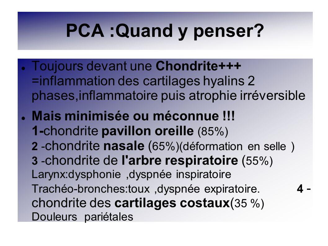 PCA :Quand y penser? Toujours devant une Chondrite+++ =inflammation des cartilages hyalins 2 phases,inflammatoire puis atrophie irréversible Mais mini