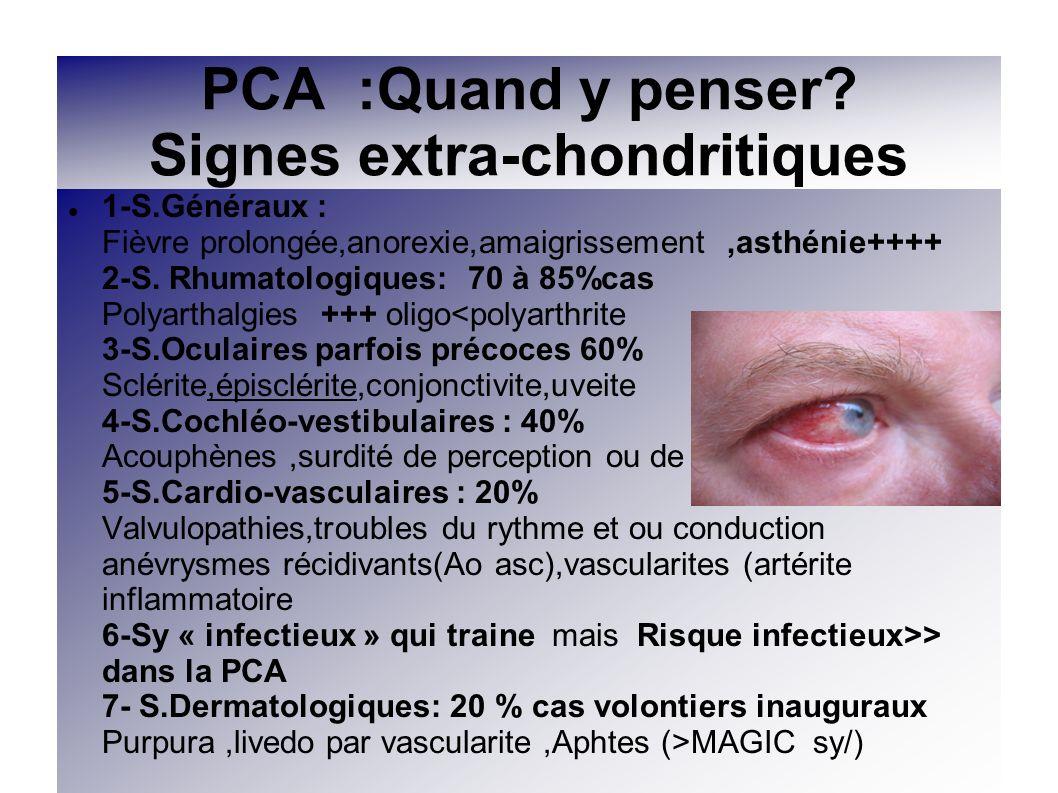 PCA :Quand y penser? Signes extra-chondritiques 1-S.Généraux : Fièvre prolongée,anorexie,amaigrissement,asthénie++++ 2-S. Rhumatologiques: 70 à 85%cas