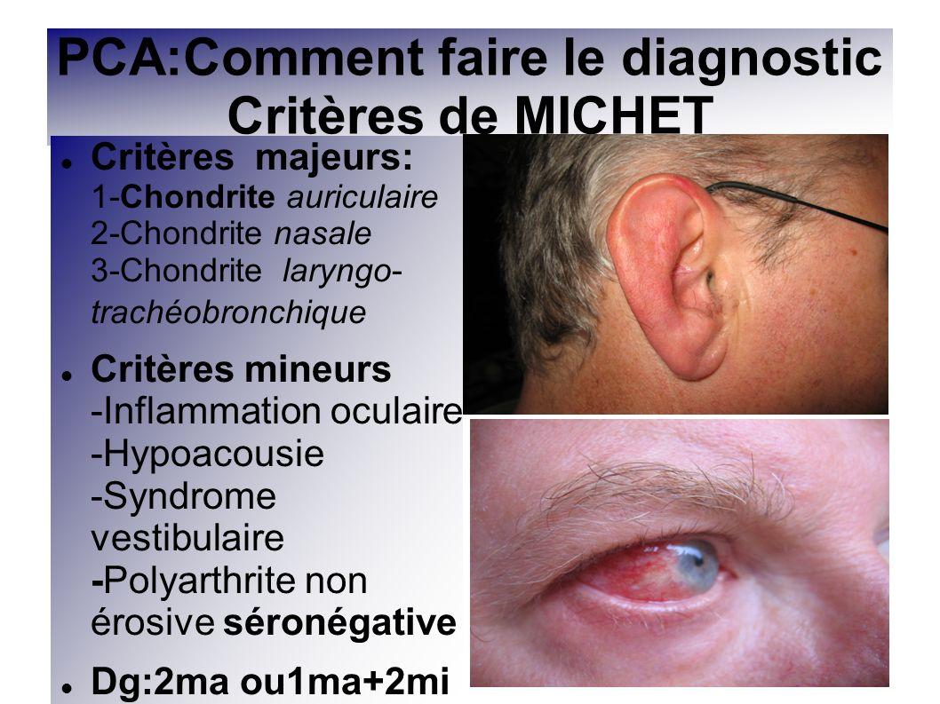 PCA:Comment faire le diagnostic Critères de MICHET Critères majeurs: 1-Chondrite auriculaire 2-Chondrite nasale 3-Chondrite laryngo- trachéobronchique