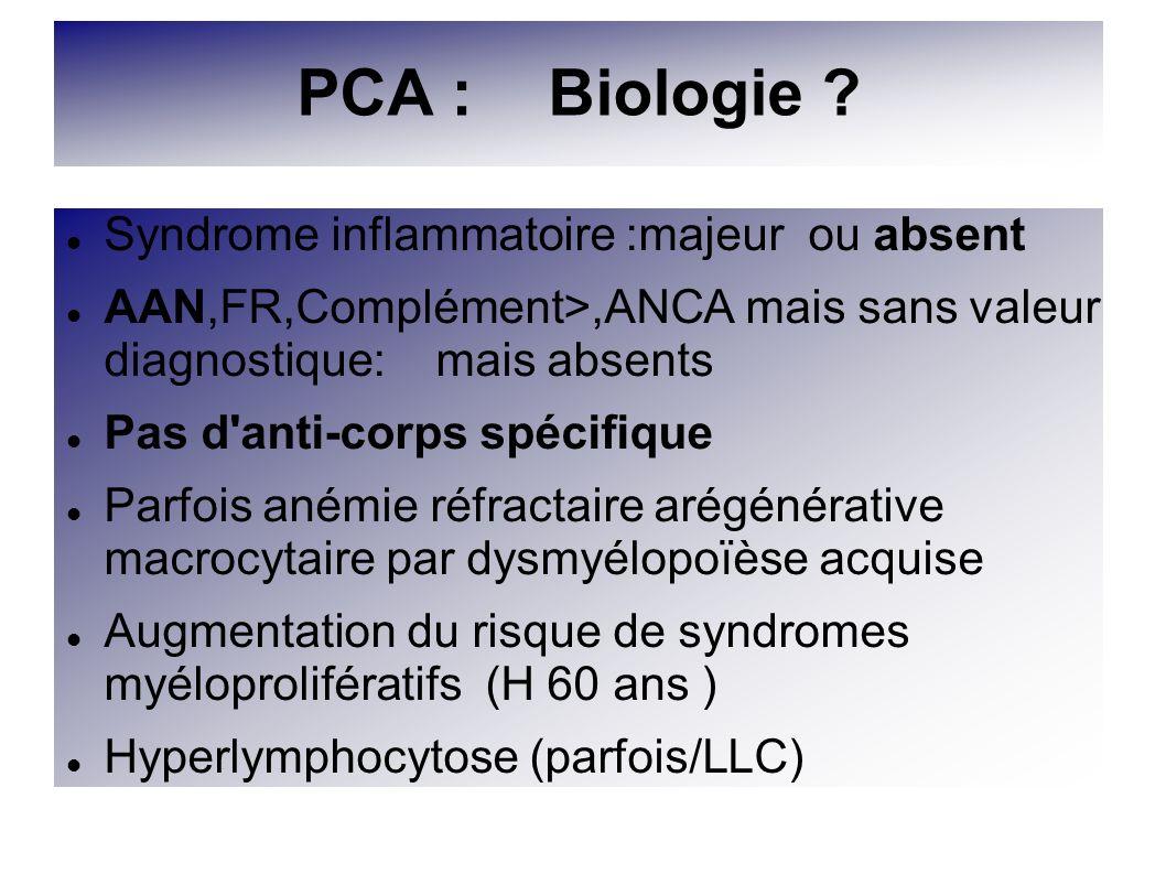 PCA : Biologie ? Syndrome inflammatoire :majeur ou absent AAN,FR,Complément>,ANCA mais sans valeur diagnostique: mais absents Pas d'anti-corps spécifi