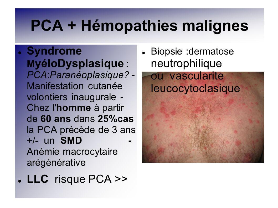 PCA + Hémopathies malignes Syndrome M yéloDysplasique : PCA:Paranéoplasique? - Manifestation cutanée volontiers inaugurale - Chez l'homme à partir de