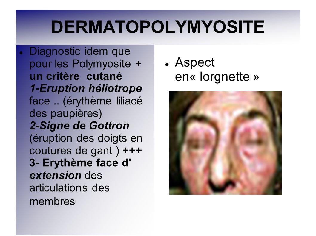DERMATOPOLYMYOSITE Diagnostic idem que pour les Polymyosite + un critère cutané 1-Eruption héliotrope face.. (érythème liliacé des paupières) 2-Signe
