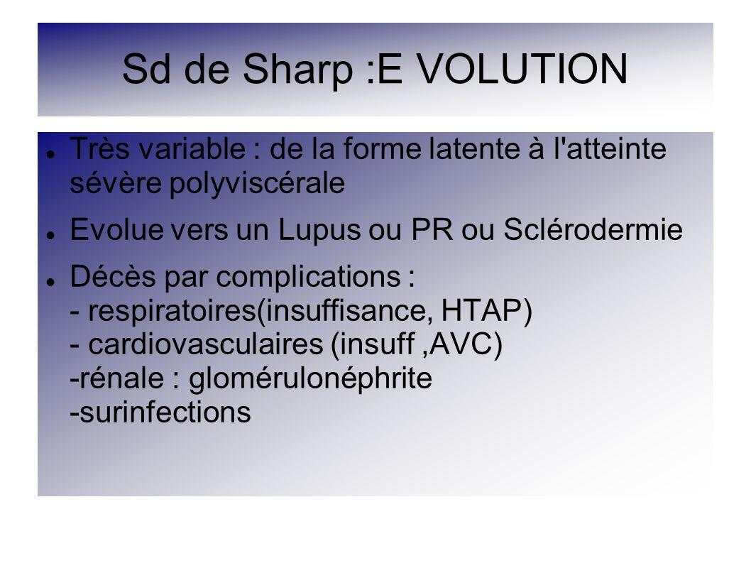 Sd de Sharp :E VOLUTION Très variable : de la forme latente à l'atteinte sévère polyviscérale Evolue vers un Lupus ou PR ou Sclérodermie Décès par com