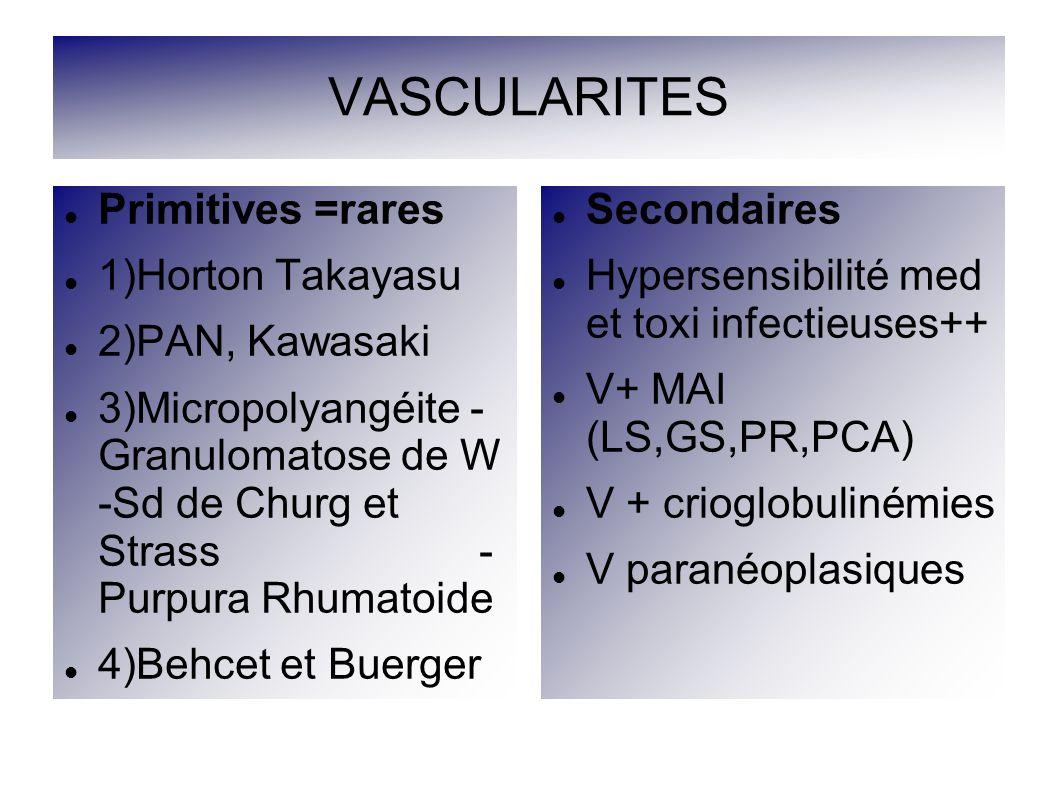 VASCULARITES Primitives =rares 1)Horton Takayasu 2)PAN, Kawasaki 3)Micropolyangéite - Granulomatose de W -Sd de Churg et Strass - Purpura Rhumatoide 4