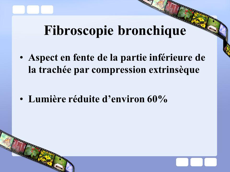Fibroscopie bronchique Aspect en fente de la partie inférieure de la trachée par compression extrinsèque Lumière réduite denviron 60%