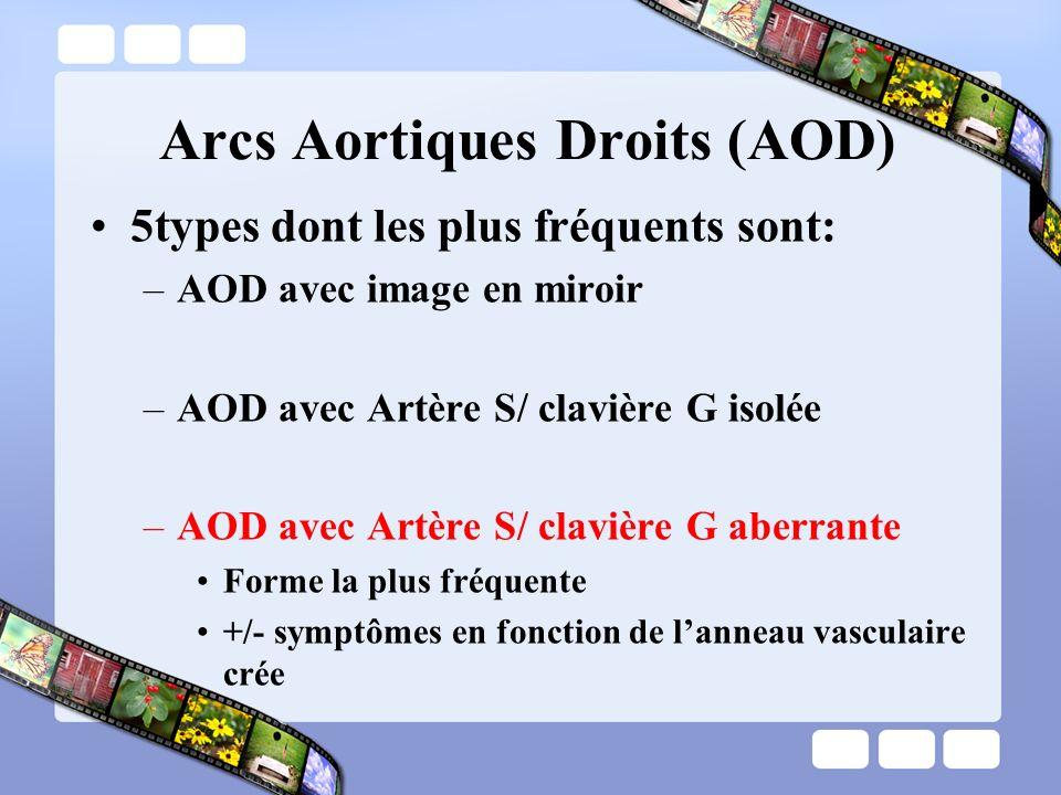 Arcs Aortiques Droits (AOD) 5types dont les plus fréquents sont: –AOD avec image en miroir –AOD avec Artère S/ clavière G isolée –AOD avec Artère S/ c