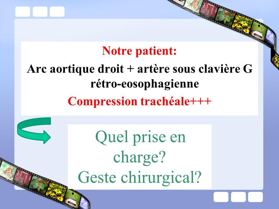 Notre patient: Arc aortique droit + artère sous clavière G rétro-eosophagienne Compression trachéale+++ Quel prise en charge? Geste chirurgical?
