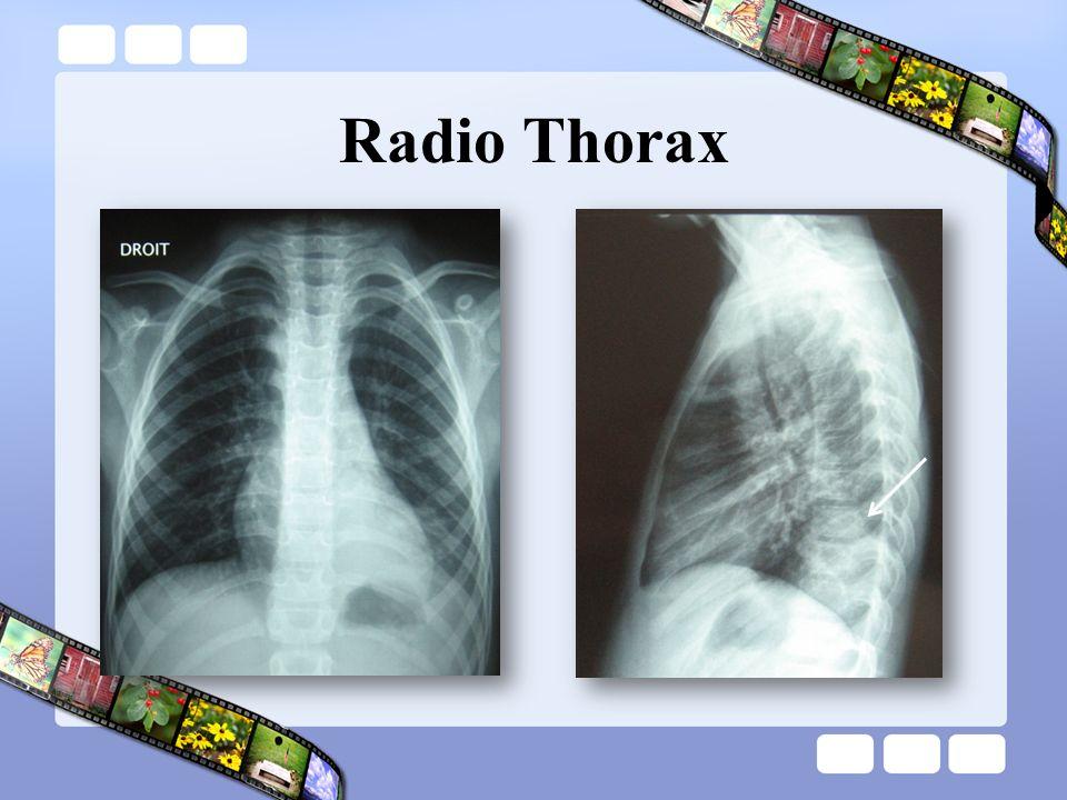 Radio Thorax