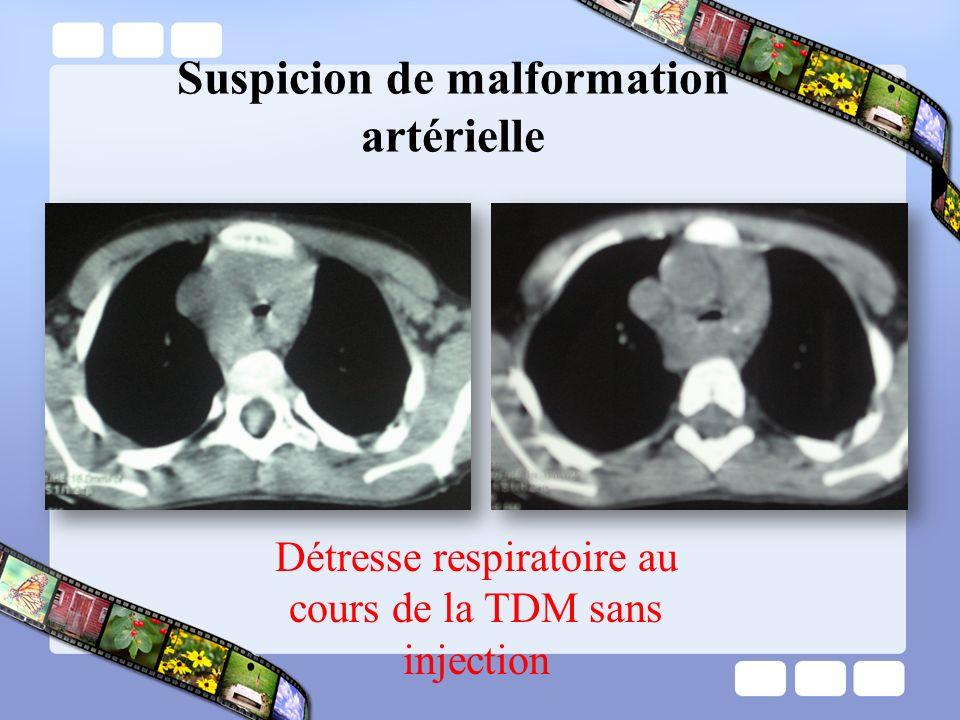 Suspicion de malformation artérielle Détresse respiratoire au cours de la TDM sans injection