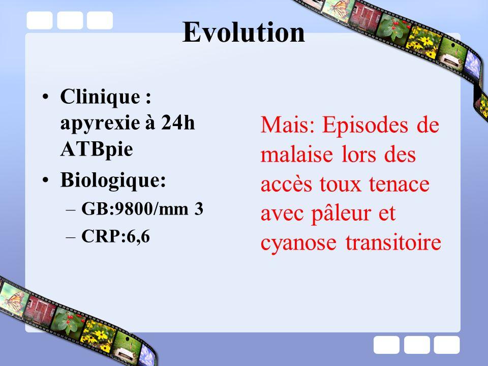 Clinique : apyrexie à 24h ATBpie Biologique: –GB:9800/mm 3 –CRP:6,6 Evolution Mais: Episodes de malaise lors des accès toux tenace avec pâleur et cyan