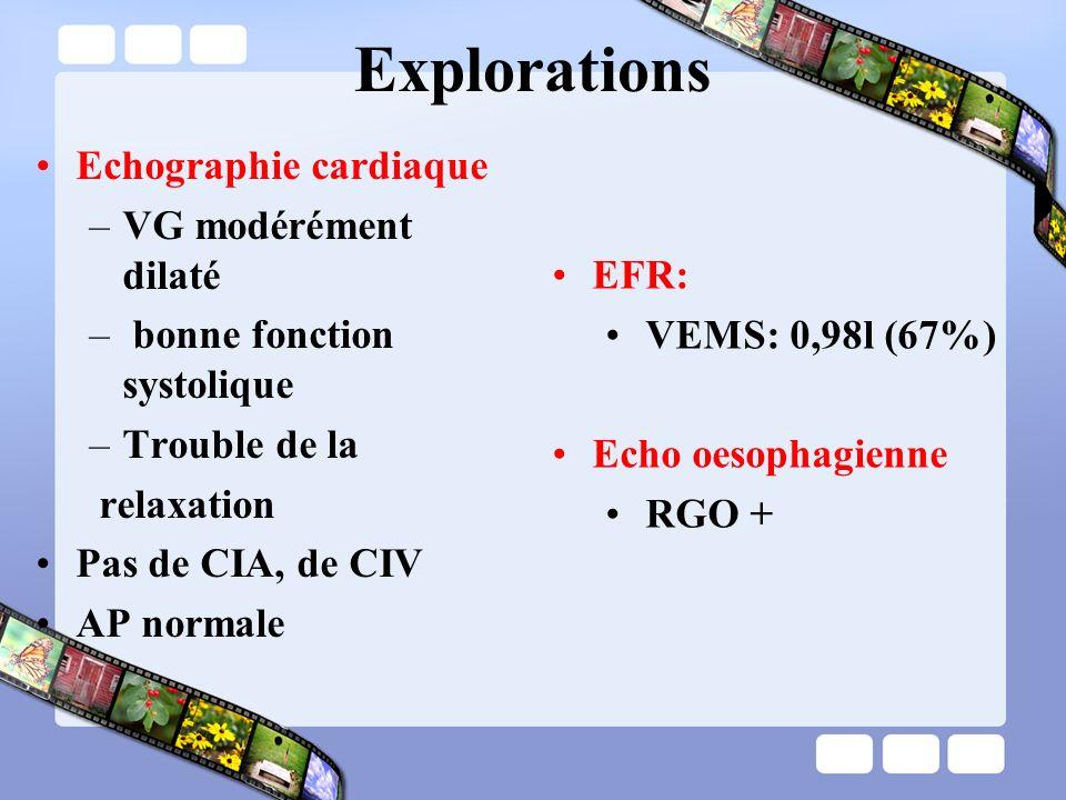 Explorations Echographie cardiaque –VG modérément dilaté – bonne fonction systolique –Trouble de la relaxation Pas de CIA, de CIV AP normale EFR: VEMS