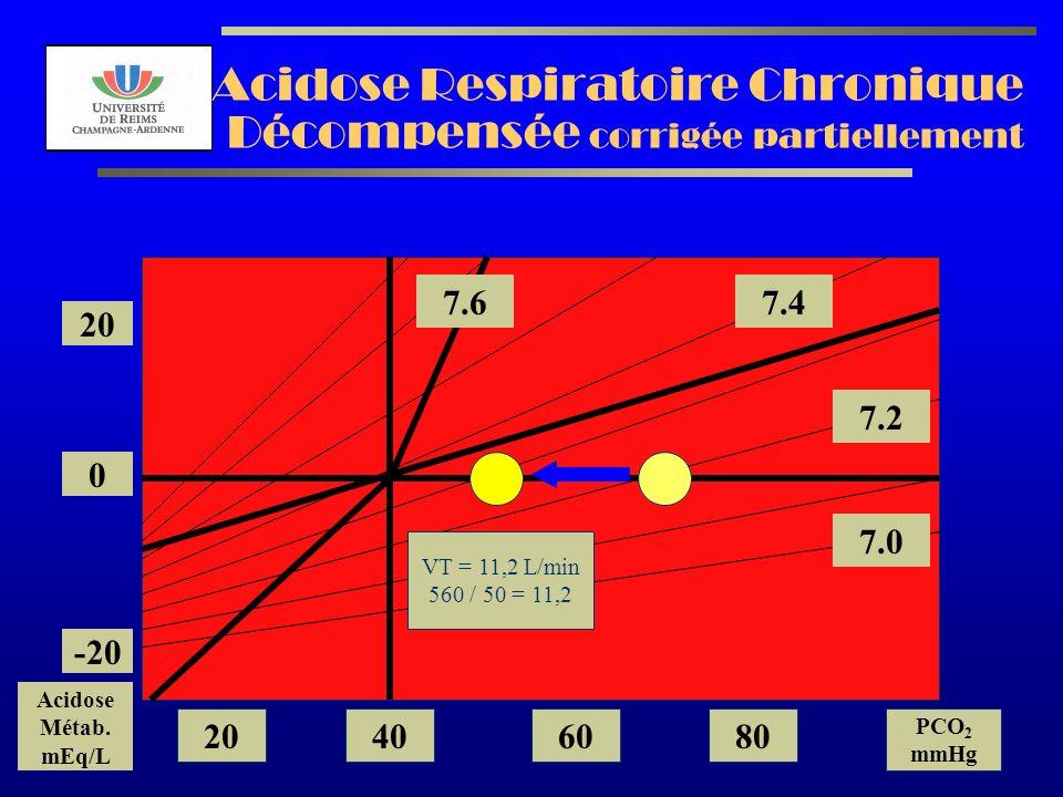 AL2003 Acidose Respiratoire Chronique Décompensée corrigée partiellement 7.2 7.0 7.47.6 20 0 -20 Acidose Métab. mEq/L 20406080 PCO 2 mmHg VT = 11,2 L/