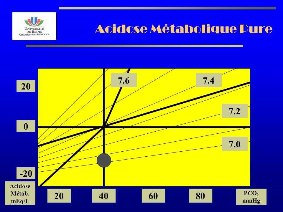 AL2003 Acidose Métabolique Pure 7.2 7.0 7.47.6 20 0 -20 Acidose Métab. mEq/L 20406080 PCO 2 mmHg
