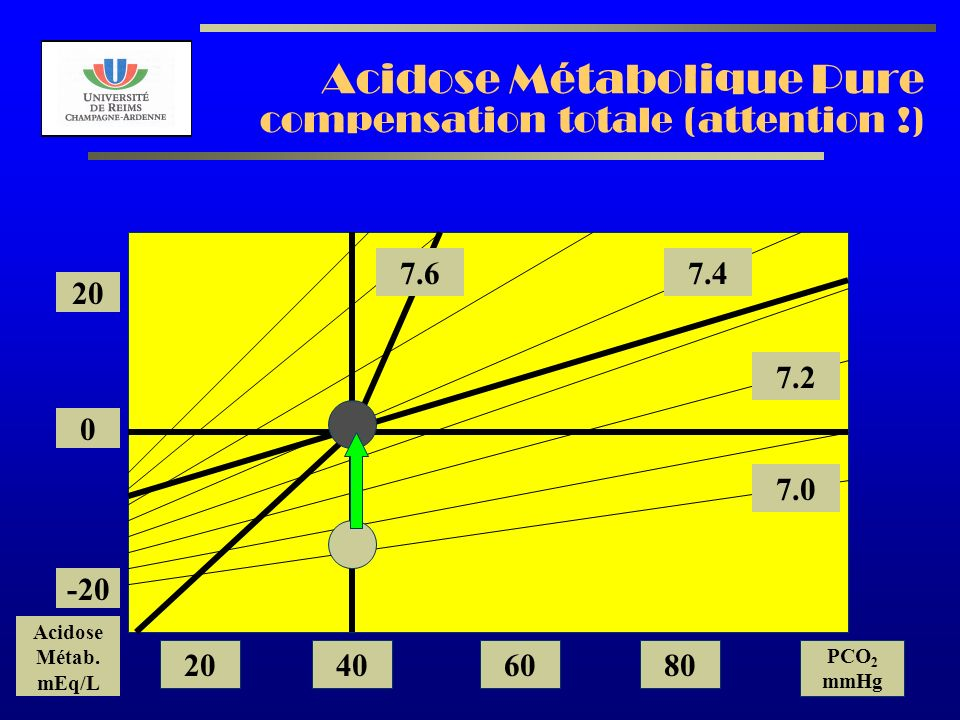 AL2003 Acidose Métabolique Pure compensation totale (attention !) 7.2 7.0 7.47.6 20 0 -20 Acidose Métab.