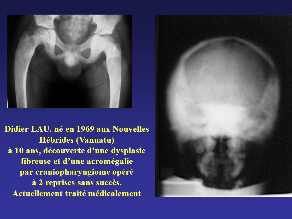 Didier LAU. né en 1969 aux Nouvelles Hébrides (Vanuatu) à 10 ans, découverte dune dysplasie fibreuse et dune acromégalie par craniopharyngiome opéré à