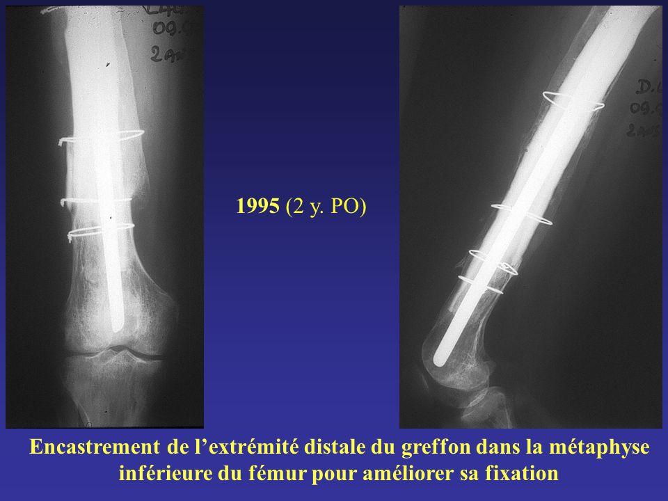 Encastrement de lextrémité distale du greffon dans la métaphyse inférieure du fémur pour améliorer sa fixation 1995 (2 y. PO)