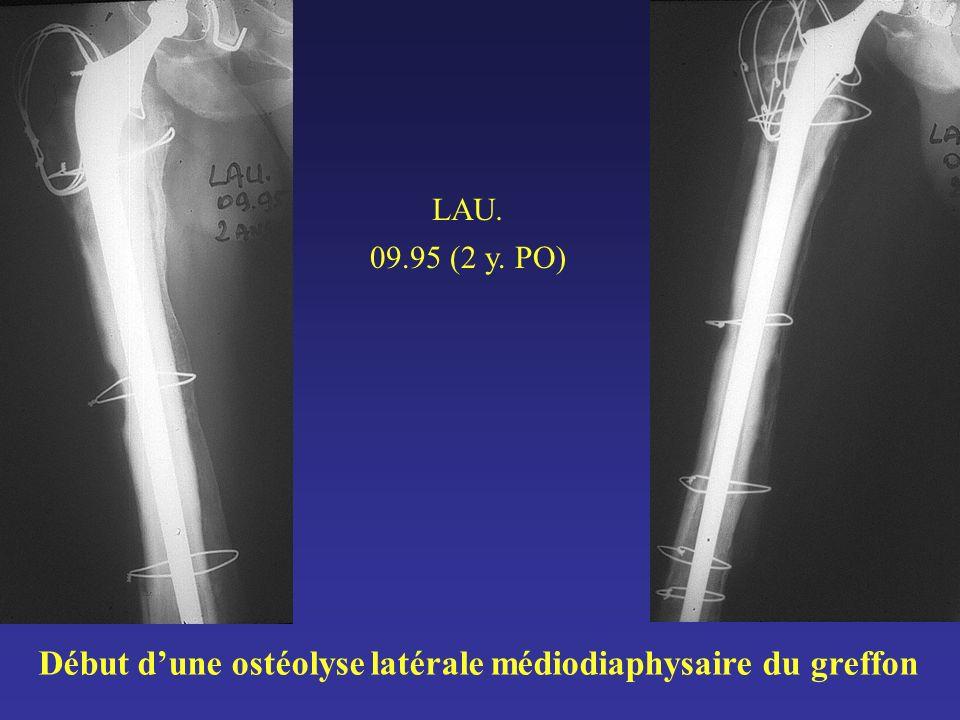 LAU. 09.95 (2 y. PO) Début dune ostéolyse latérale médiodiaphysaire du greffon