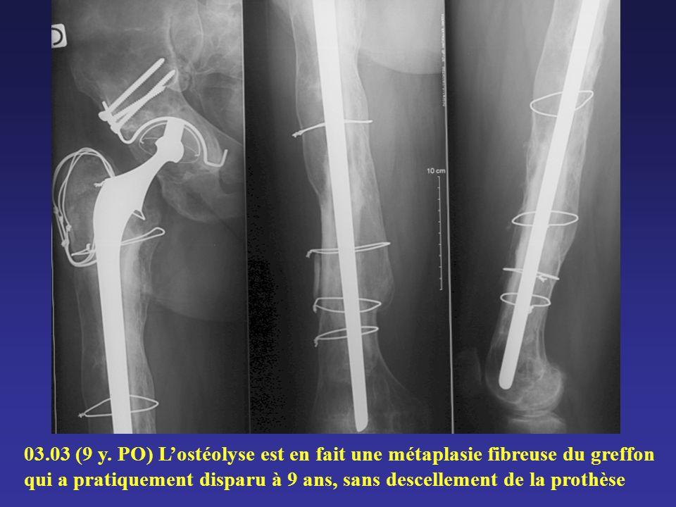 03.03 (9 y. PO) Lostéolyse est en fait une métaplasie fibreuse du greffon qui a pratiquement disparu à 9 ans, sans descellement de la prothèse