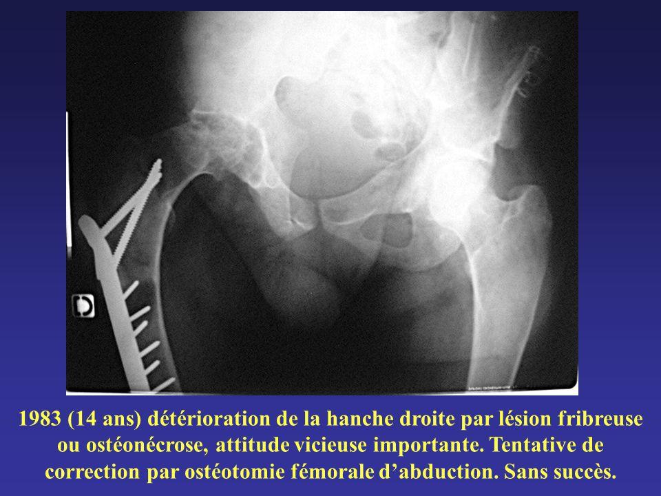 1983 (14 ans) détérioration de la hanche droite par lésion fribreuse ou ostéonécrose, attitude vicieuse importante. Tentative de correction par ostéot
