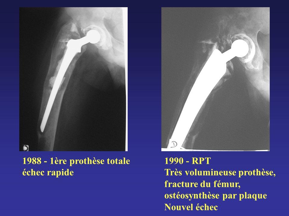 1988 - 1ère prothèse totale échec rapide 1990 - RPT Très volumineuse prothèse, fracture du fémur, ostéosynthèse par plaque Nouvel échec