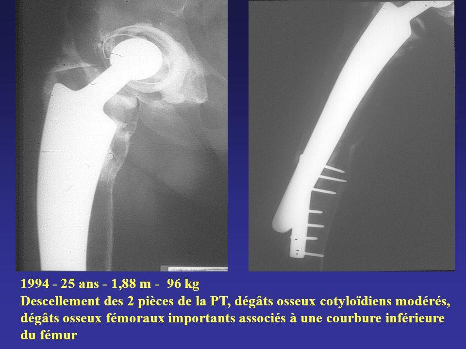 1994 - 25 ans - 1,88 m - 96 kg Descellement des 2 pièces de la PT, dégâts osseux cotyloïdiens modérés, dégâts osseux fémoraux importants associés à un