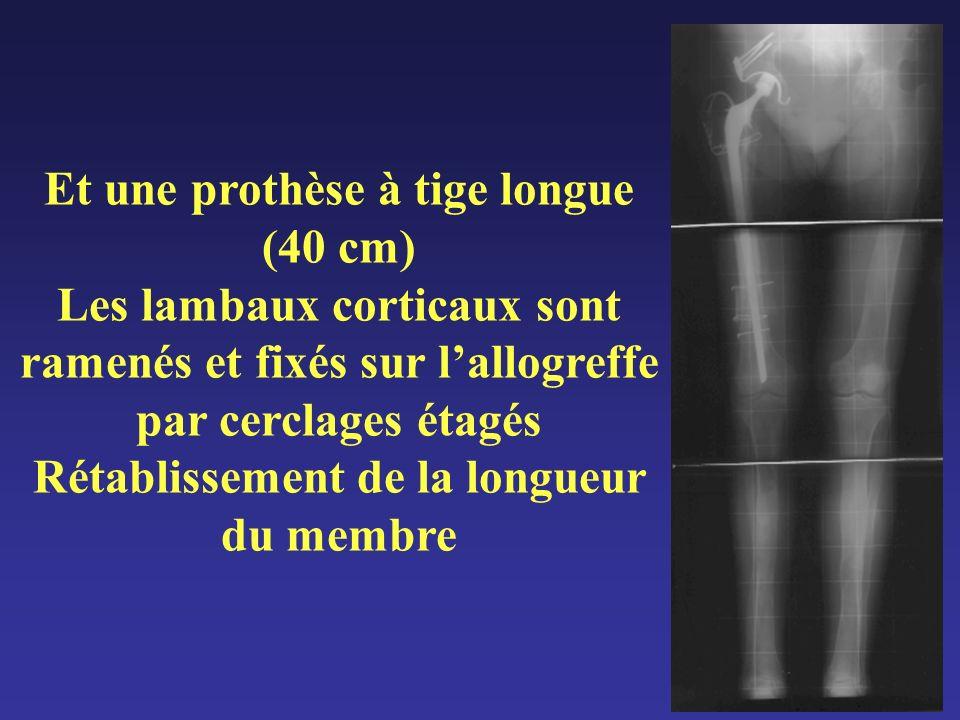 Et une prothèse à tige longue (40 cm) Les lambaux corticaux sont ramenés et fixés sur lallogreffe par cerclages étagés Rétablissement de la longueur d