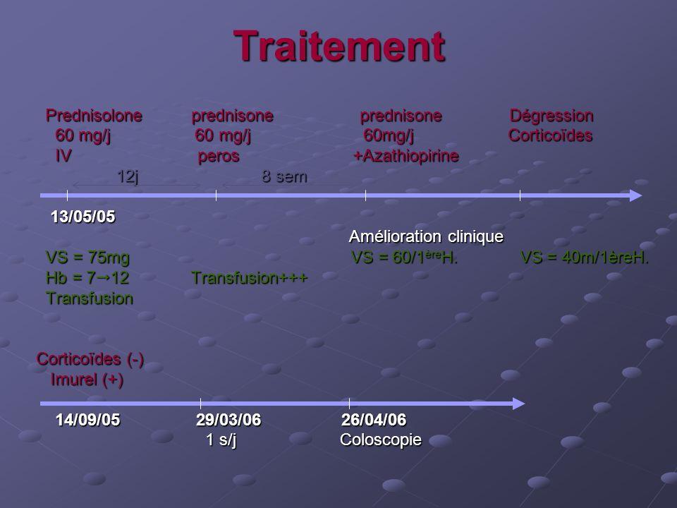 Traitement Prednisolone prednisone prednisone Dégression Prednisolone prednisone prednisone Dégression 60 mg/j 60 mg/j 60mg/j Corticoïdes 60 mg/j 60 m