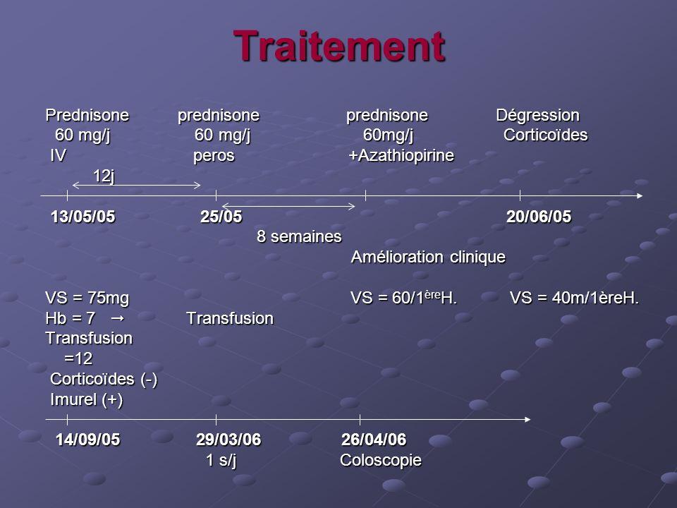 Traitement Prednisone prednisone prednisone Dégression Prednisone prednisone prednisone Dégression 60 mg/j 60 mg/j 60mg/j Corticoïdes 60 mg/j 60 mg/j