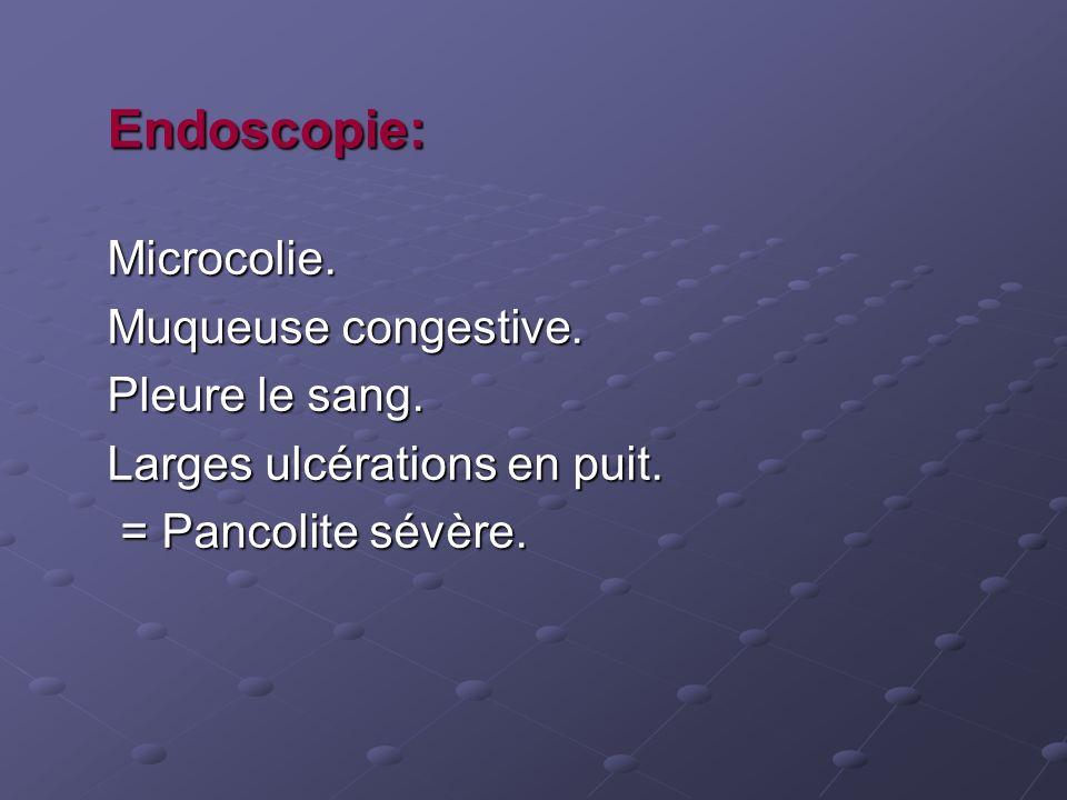 Endoscopie: Microcolie. Muqueuse congestive. Pleure le sang. Larges ulcérations en puit. = Pancolite sévère. = Pancolite sévère.