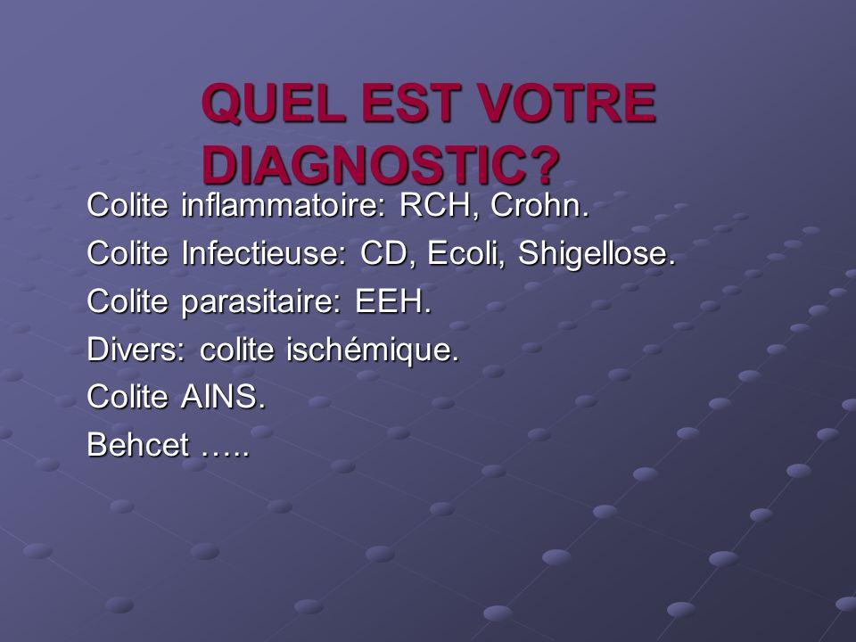 QUEL EST VOTRE DIAGNOSTIC? Colite inflammatoire: RCH, Crohn. Colite Infectieuse: CD, Ecoli, Shigellose. Colite parasitaire: EEH. Divers: colite ischém