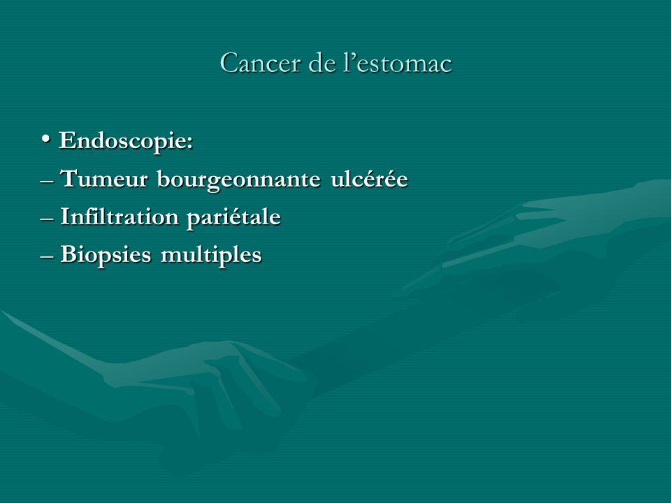 Cancer de lestomac Endoscopie: Endoscopie: – Tumeur bourgeonnante ulcérée – Infiltration pariétale – Biopsies multiples
