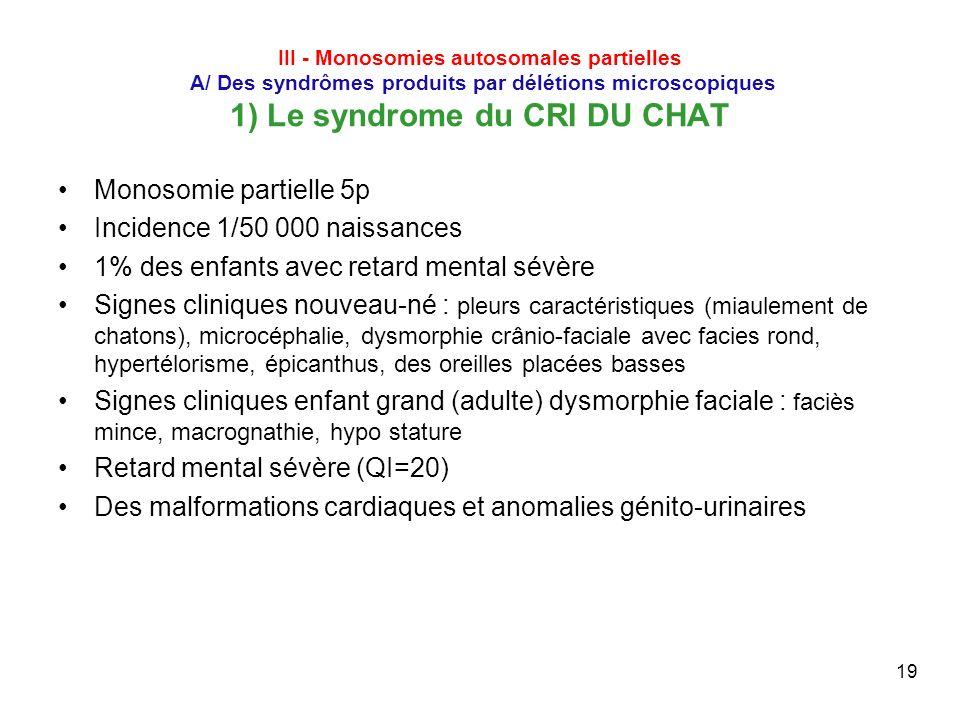 19 III - Monosomies autosomales partielles A/ Des syndrômes produits par délétions microscopiques 1) Le syndrome du CRI DU CHAT Monosomie partielle 5p