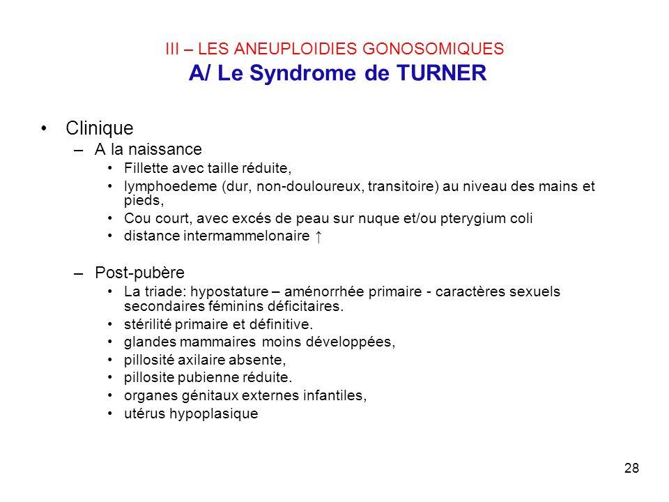 28 III – LES ANEUPLOIDIES GONOSOMIQUES A/ Le Syndrome de TURNER Clinique –A la naissance Fillette avec taille réduite, lymphoedeme (dur, non-douloureu