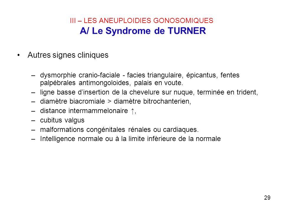 29 III – LES ANEUPLOIDIES GONOSOMIQUES A/ Le Syndrome de TURNER Autres signes cliniques –dysmorphie cranio-faciale - facies triangulaire, épicantus, f