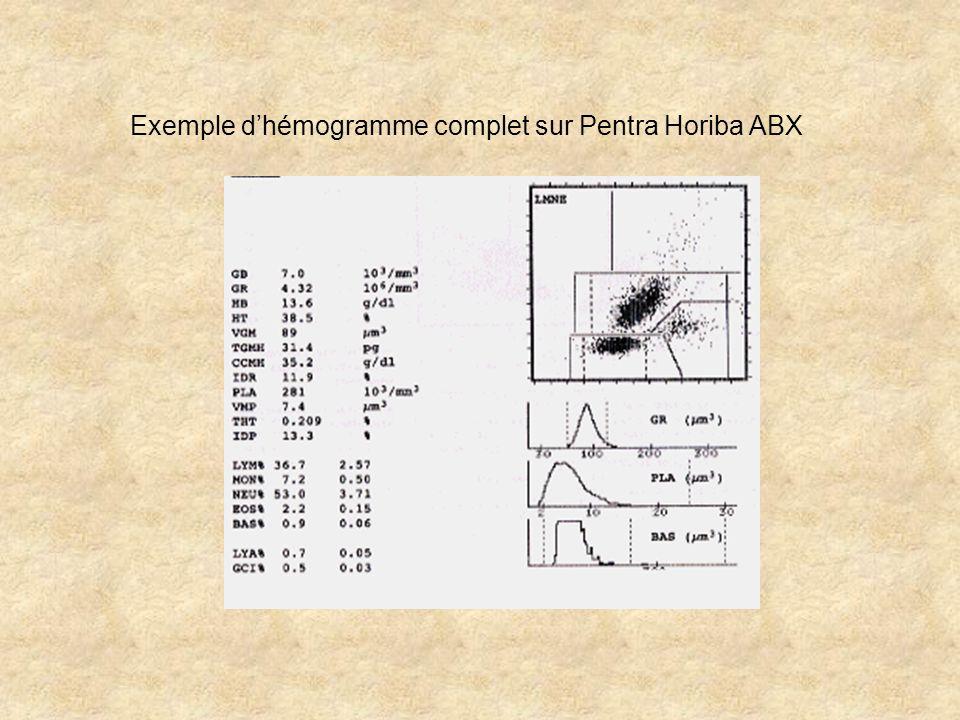 Exemple dhémogramme complet sur Pentra Horiba ABX