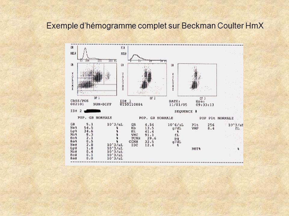 Exemple dhémogramme complet sur Beckman Coulter HmX