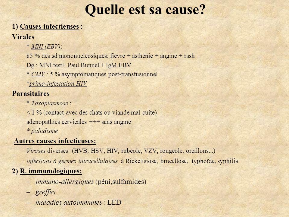 Quelle est sa cause? 1) Causes infectieuses : Virales * MNI (EBV): 85 % des sd mononucléosiques: fièvre + asthénie + angine + rash Dg : MNI test+ Paul