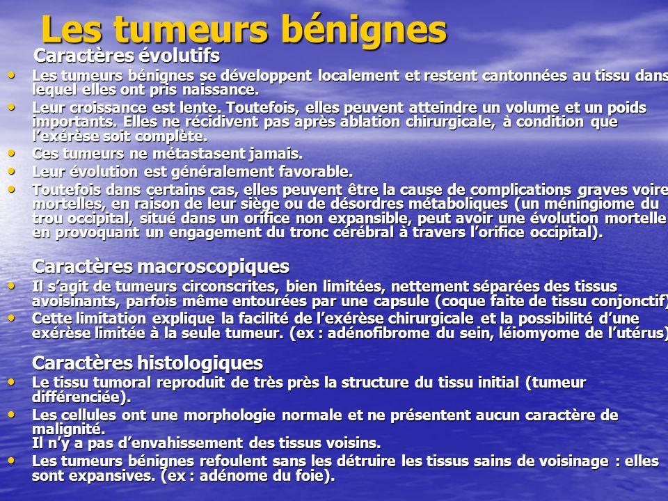 Les tumeurs malignes Les caractères des tumeurs malignes ou cancers sopposent point par point à ceux des tumeurs bénignes.