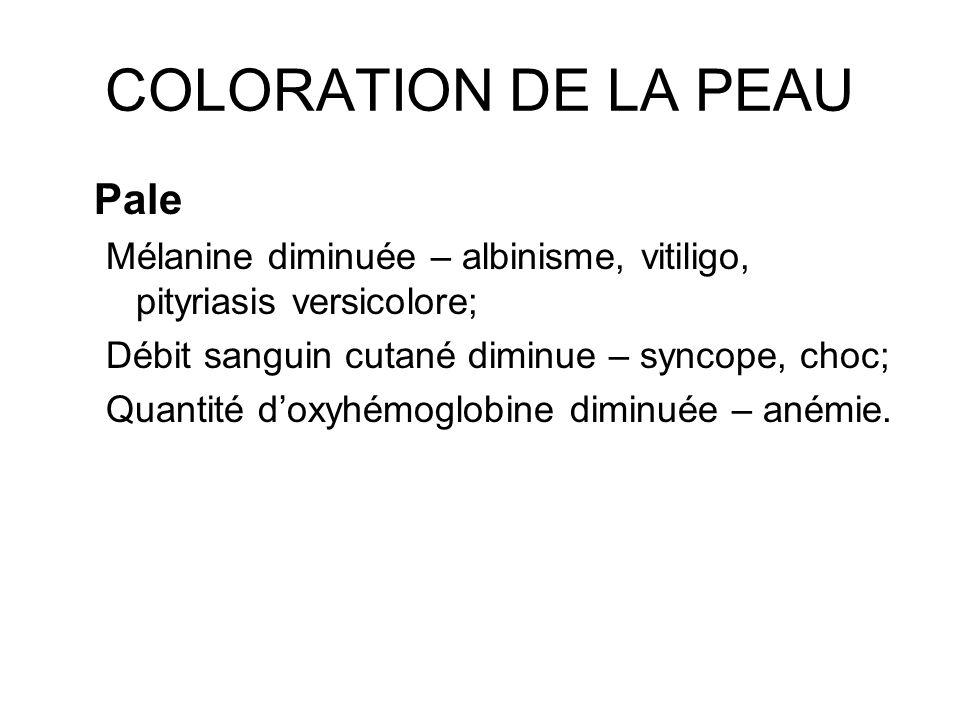 COLORATION DE LA PEAU Pale Mélanine diminuée – albinisme, vitiligo, pityriasis versicolore; Débit sanguin cutané diminue – syncope, choc; Quantité dox