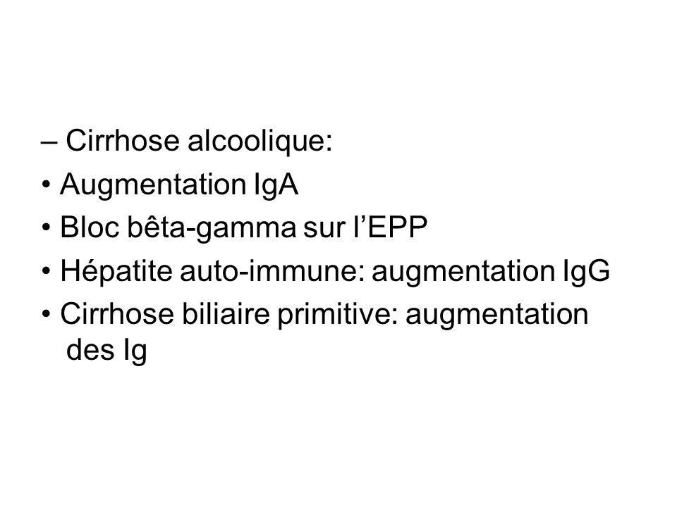 – Cirrhose alcoolique: Augmentation IgA Bloc bêta-gamma sur lEPP Hépatite auto-immune: augmentation IgG Cirrhose biliaire primitive: augmentation des