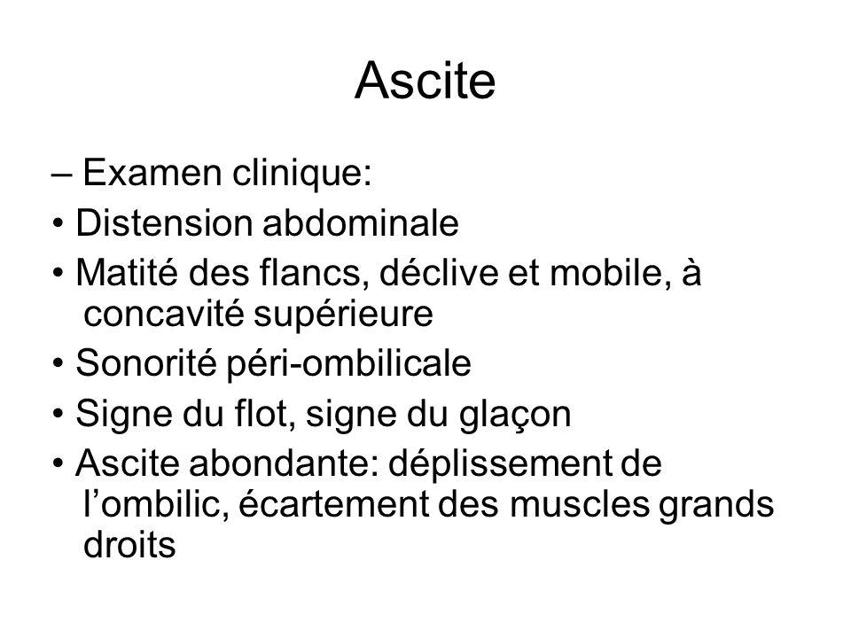 Ascite – Examen clinique: Distension abdominale Matité des flancs, déclive et mobile, à concavité supérieure Sonorité péri-ombilicale Signe du flot, s