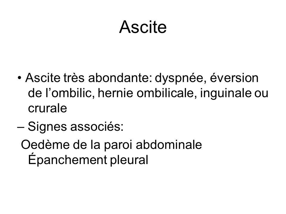 Ascite Ascite très abondante: dyspnée, éversion de lombilic, hernie ombilicale, inguinale ou crurale – Signes associés: Oedème de la paroi abdominale